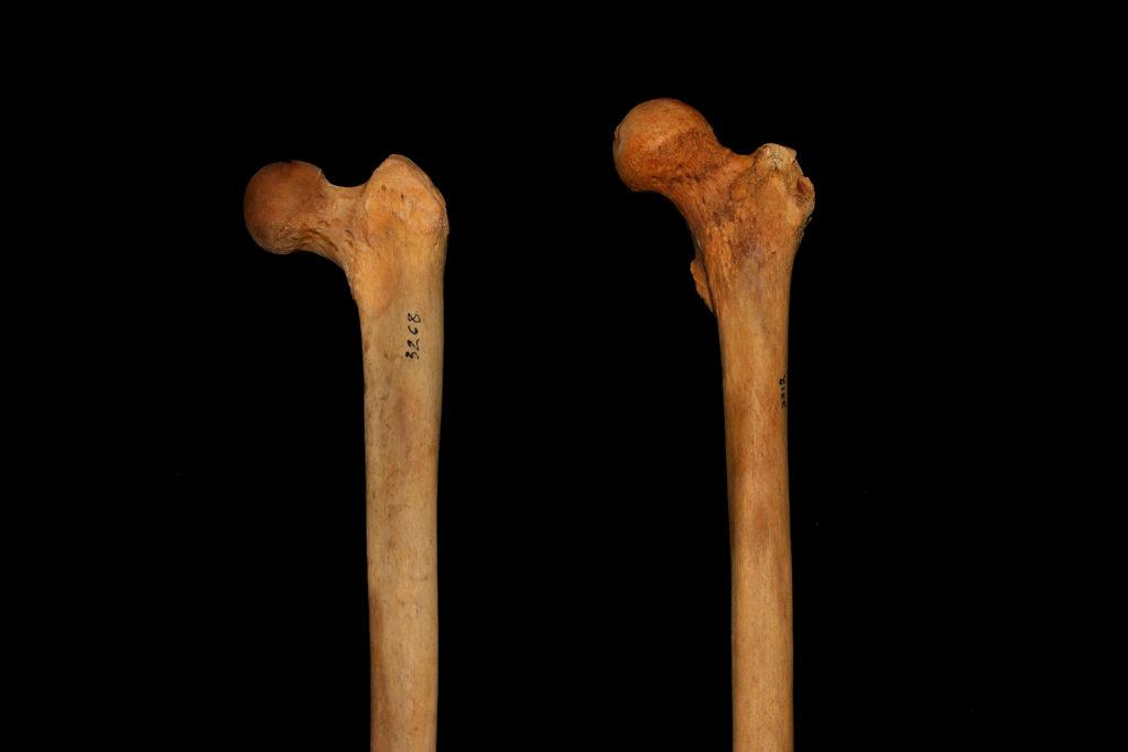 femur neck angle variation squat